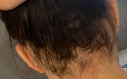 Ophiasis Alopecia Update: End Of May To End Of August